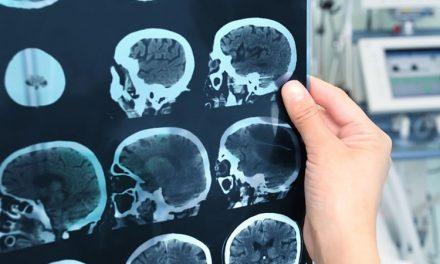 The neurological damage epidemic